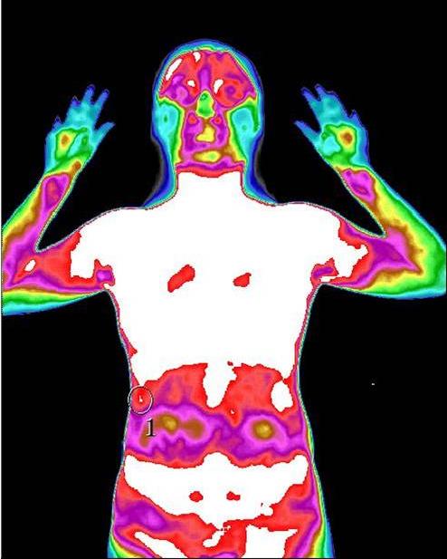 图2:标示1的位置为肝囊肿在TMT红外热成像上的成像。