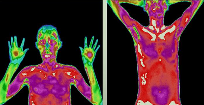 肝癌的红外热成像异常热源