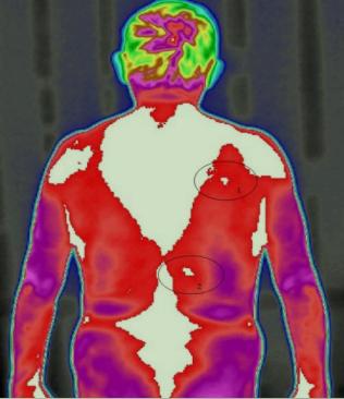 胆囊炎的红外热像仪异常热源